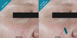 SkinCeuticals Ce Ferulic before and after