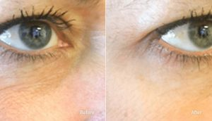 nerium before and after picture