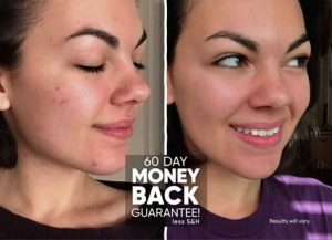 proactiv md before and after