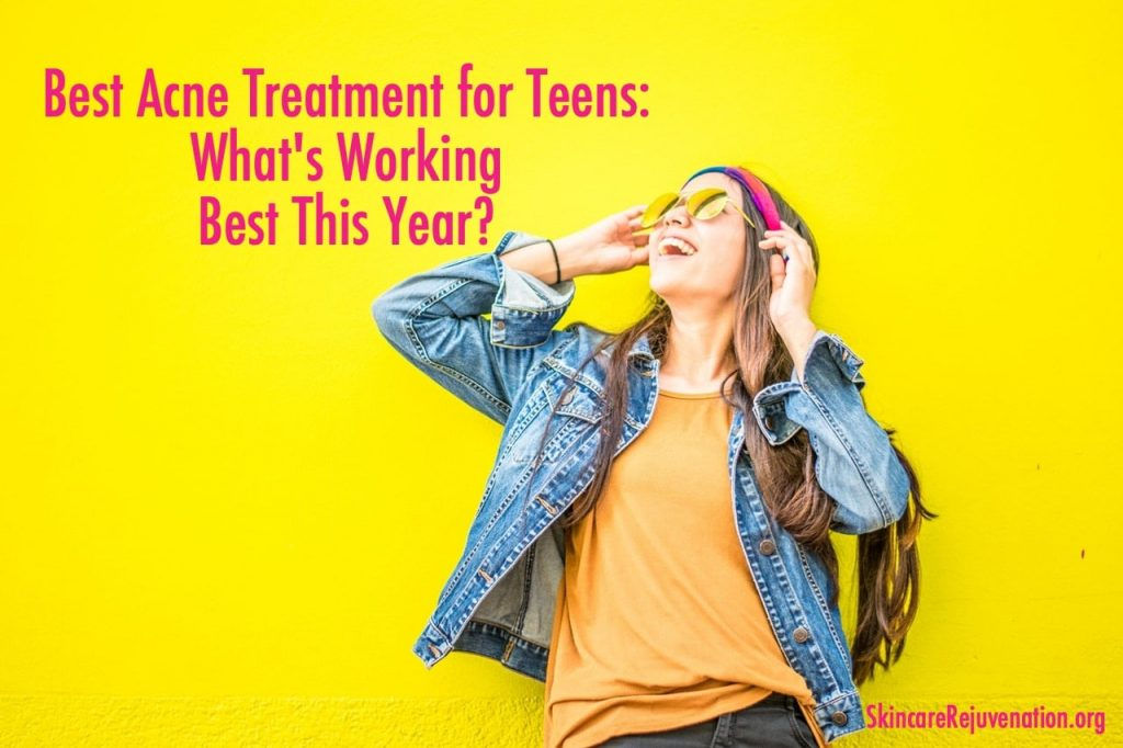 best acne products for teenagers