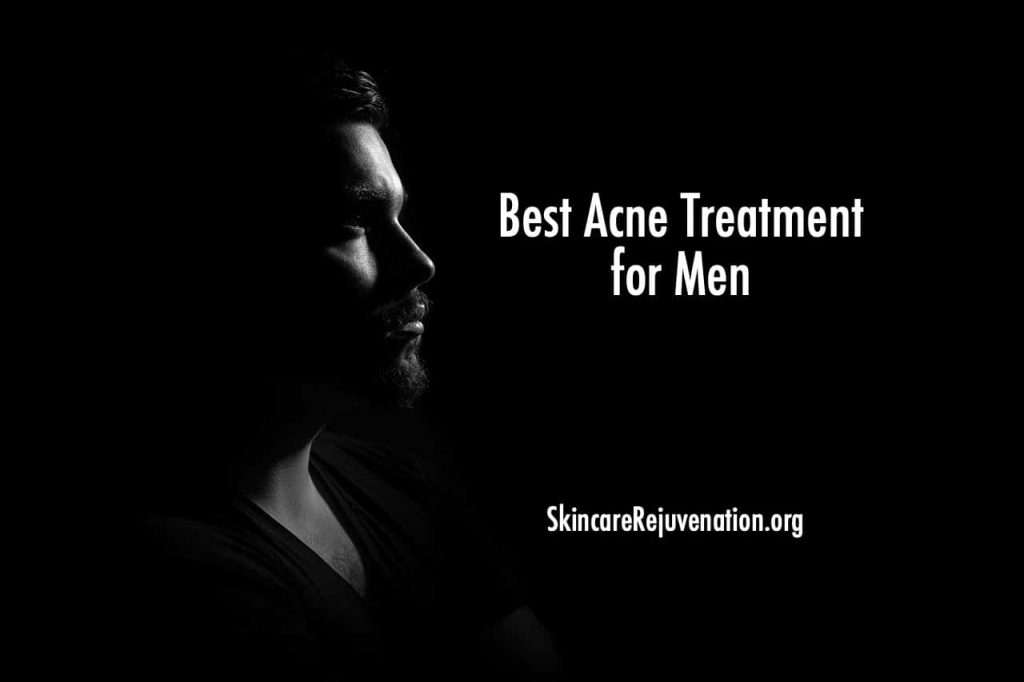 best acne treatments for men