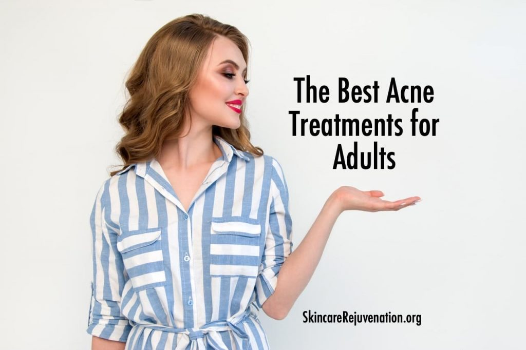 top rated acne treatments for adults