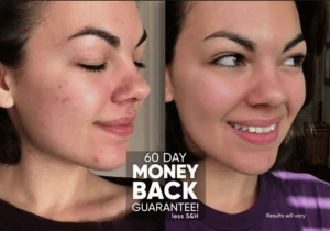 proactiv md before and after picture