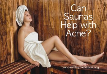can saunas help with acne