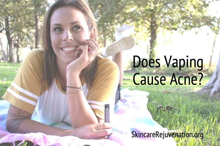 Can Vaping Cause Acne?