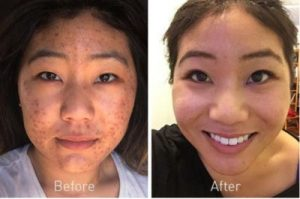 proactiv with benzoyl peroxide before and after photos