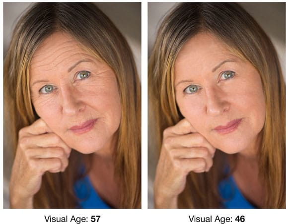 beverly hills md deep wrinkle filler before and after pictures