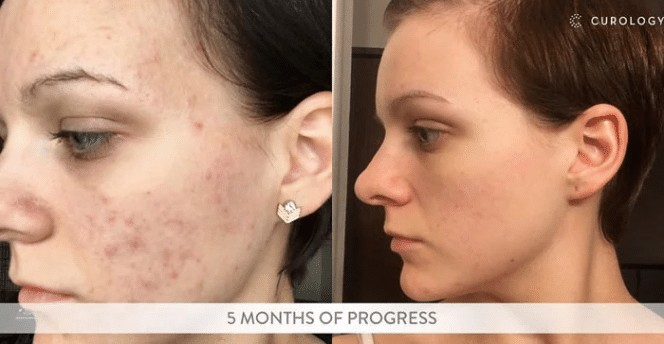 curology before and after results