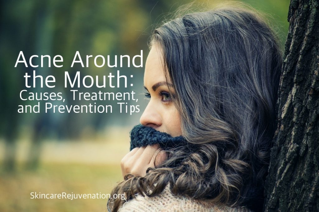 how to treat and prevent mouth acne