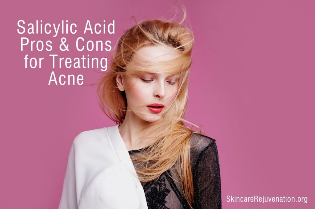 the pros and cons of salicylic acid for acne