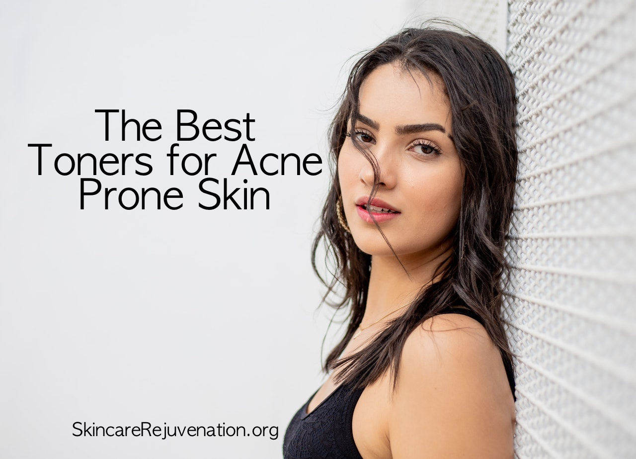 the top rated facial toners for acne prone skin
